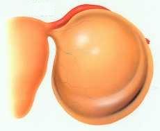 漿液性卵巣のう腫